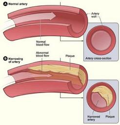 Cholestone reduce colesterolul