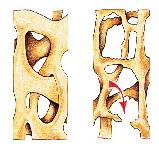 Strong Bonest pentru osteoporoza